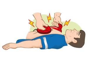 35770100-illustrazione-rianimazione-first-aid-cpr-con-defibrillatore-per-arresto-cardiaco-ideale-per-i-materi